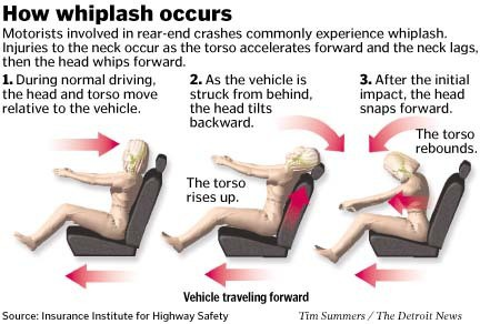 Auto accident physiotherapy for whiplash in Newmarket