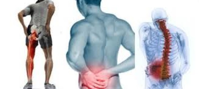 Physiotherapy for Treating Sciatica
