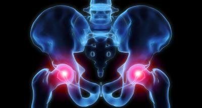hip-dysplasia-therapy-newmarket